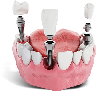 dental implant in Tampa